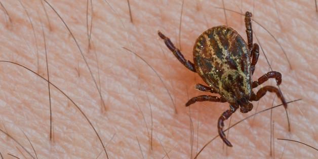 Der neu entdeckte Virus wird durch Zeckenbisse übertragen
