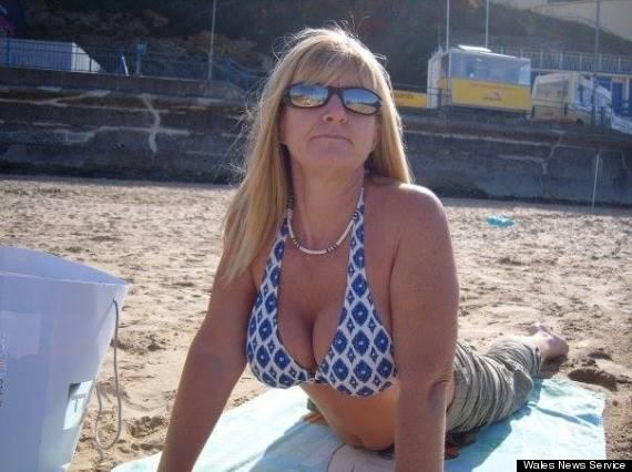 woman boob job