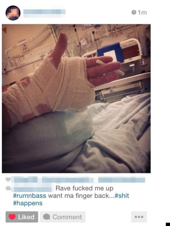 missing finger at rave