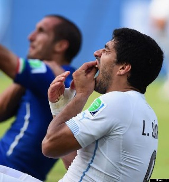 suarez biting