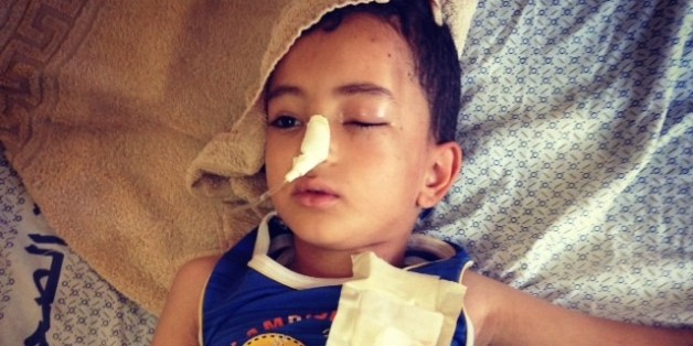 Palestinian Children Hit By Airstrikes Grapple With Injuries, Loss Of Family Members