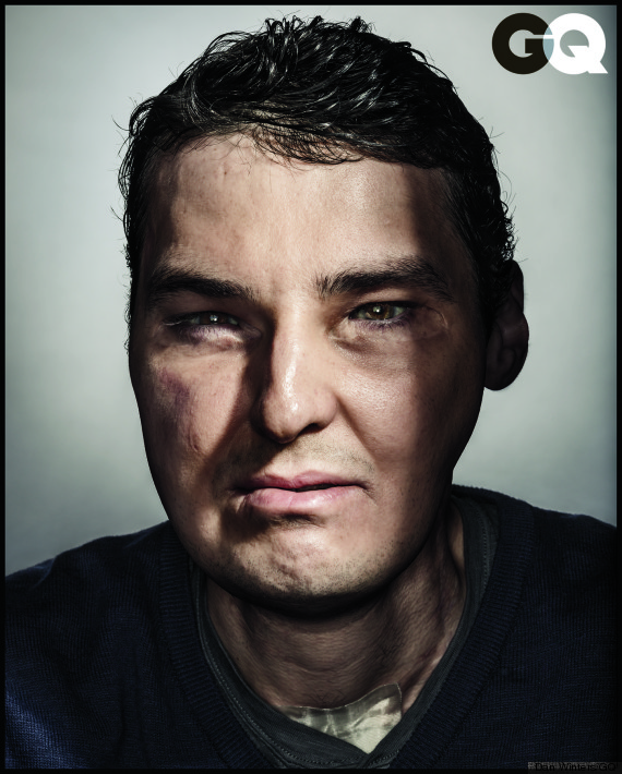 richard norris face transplant patient