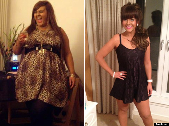 Woman, 25, Loses Nine Stone After Dad Pays £10,000 For ...