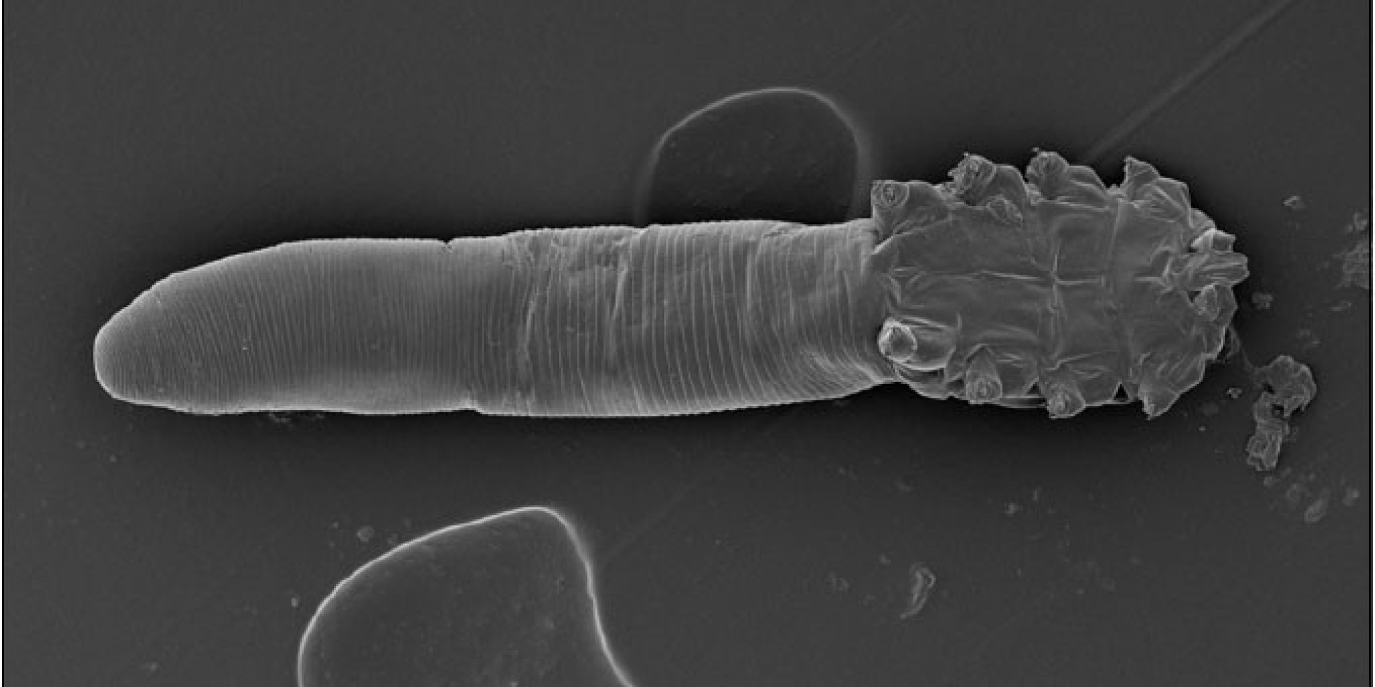 Tiny Arachnids Do Indeed Live On Your Face, Scientists Say ...
