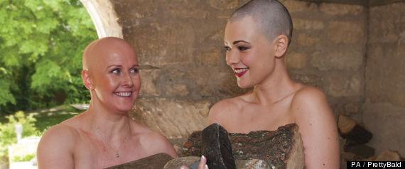 alopecia calendar