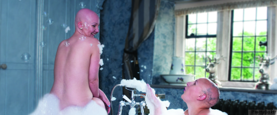 alopecia calendar bath