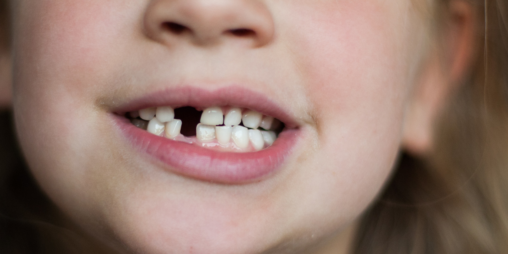Is Your Child a Mouth-Breather? There's New Help at the ...