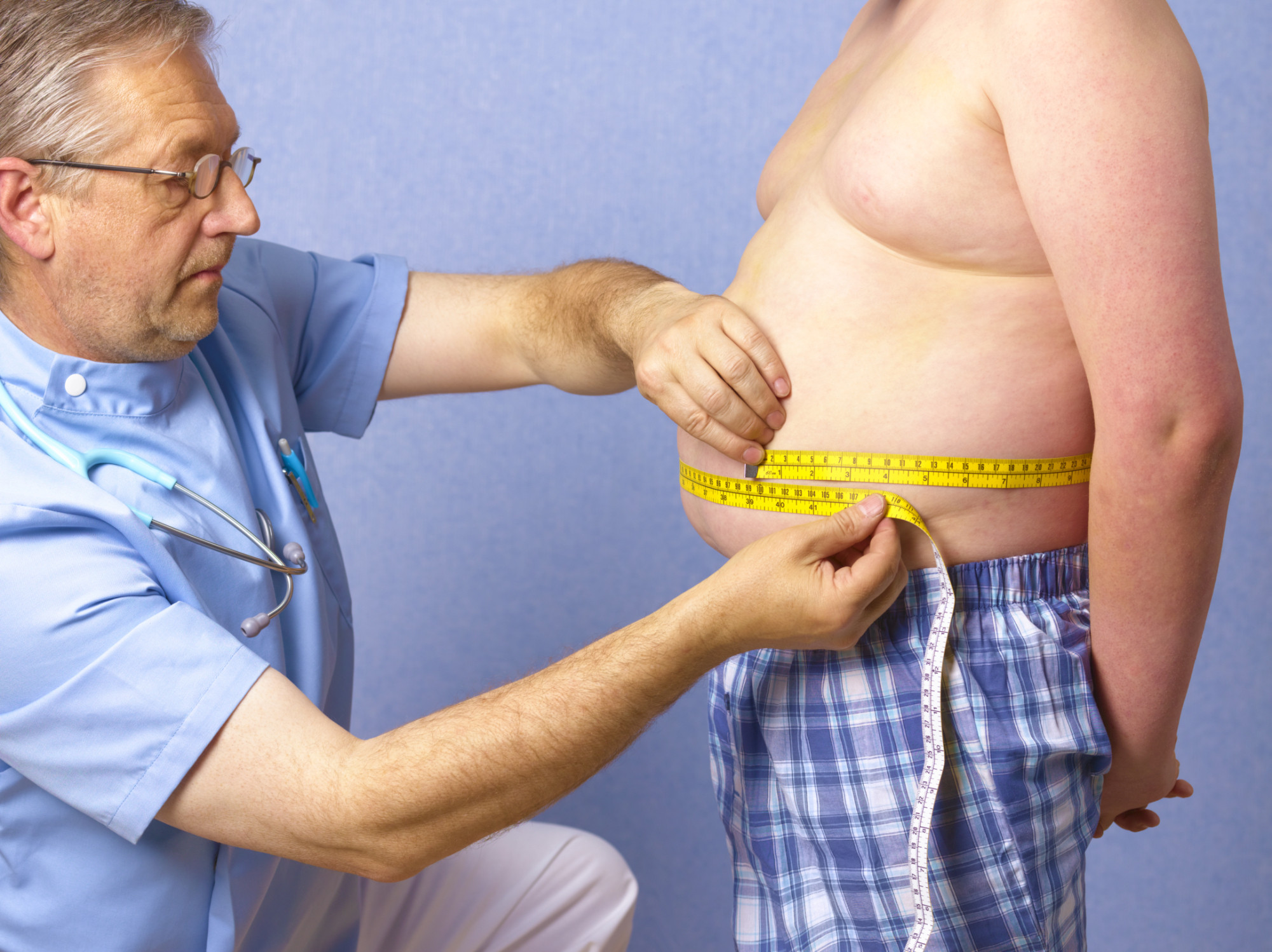 obesity uk