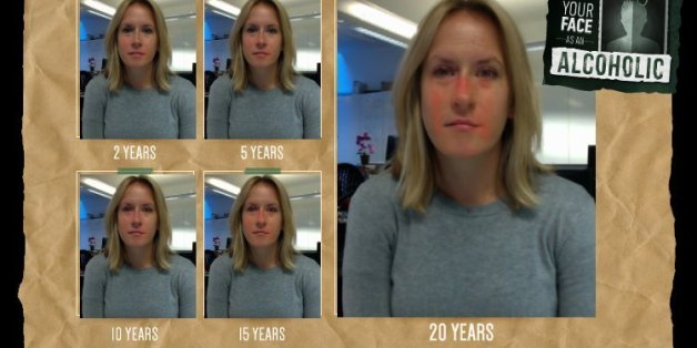 This Is What 20 Years Of Heavy Drinking Could Do To Your ...