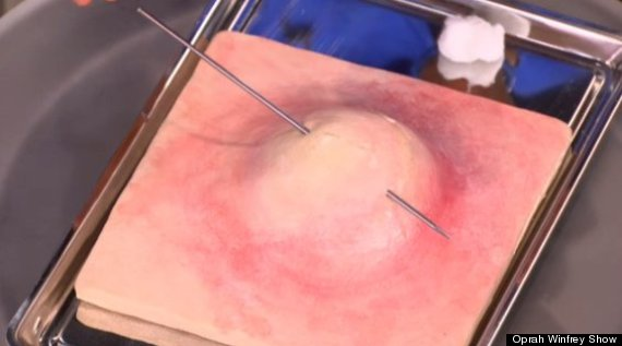 20-Year-Old Pimple Is Finally Burst In Horrendously Graphic Video