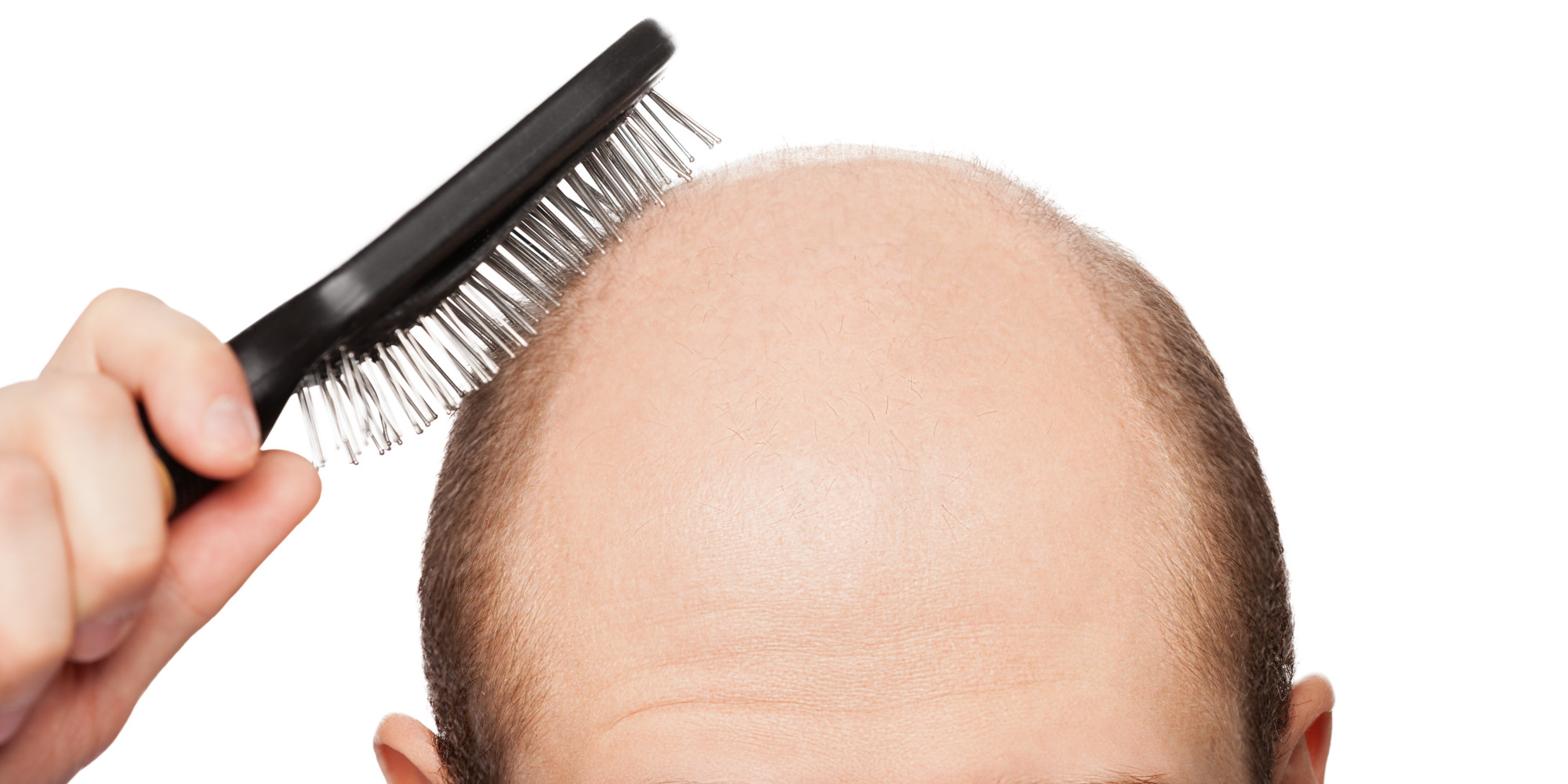 The truth about hair loss and baldness cures huffpost pmusecretfo Choice Image