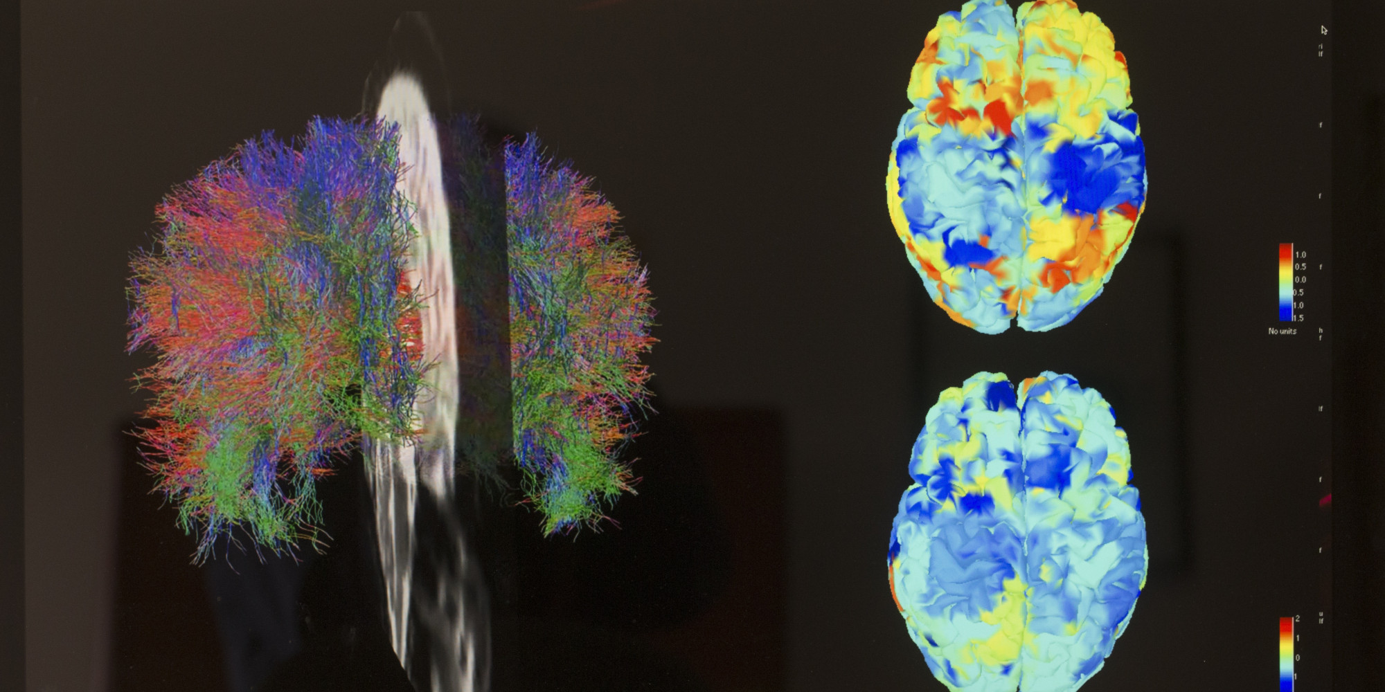research papers regarding brain-based learning