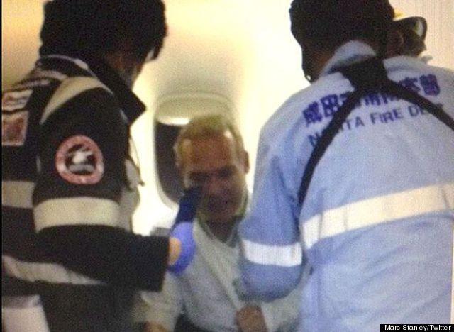 injured passenger aa280 turbulence