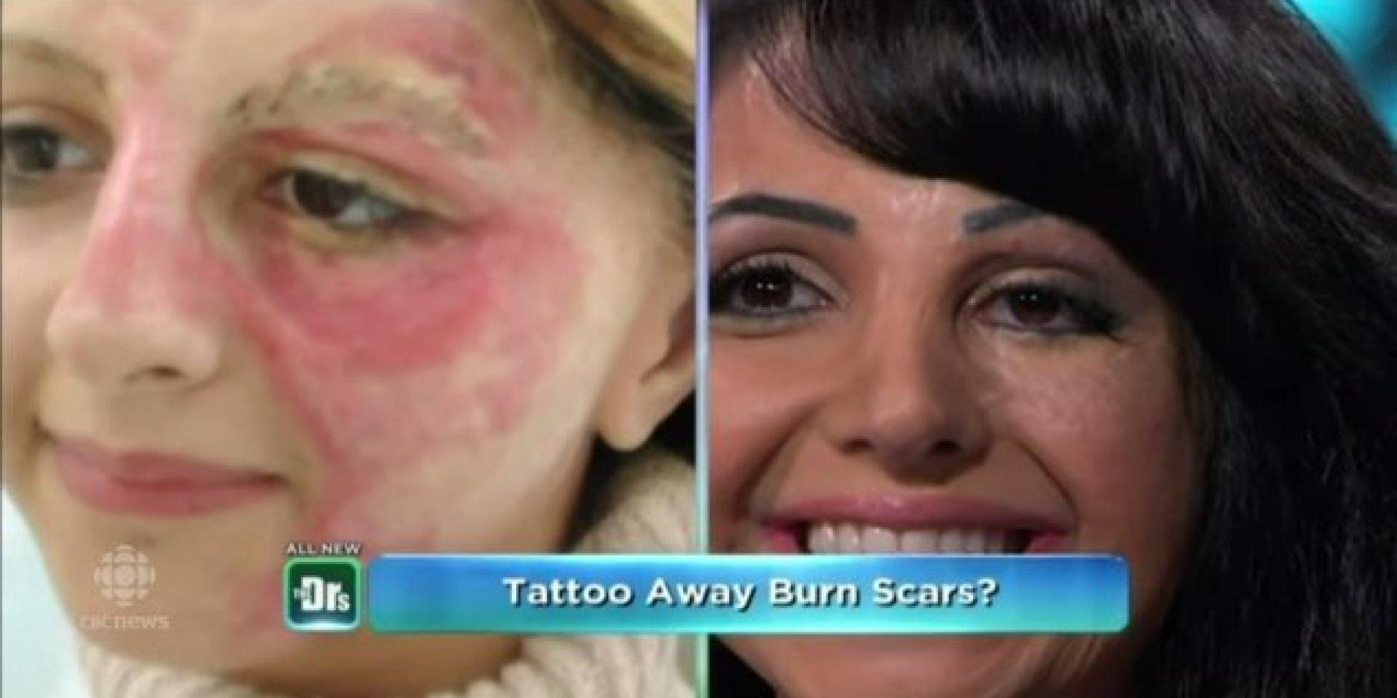 Scar makeup