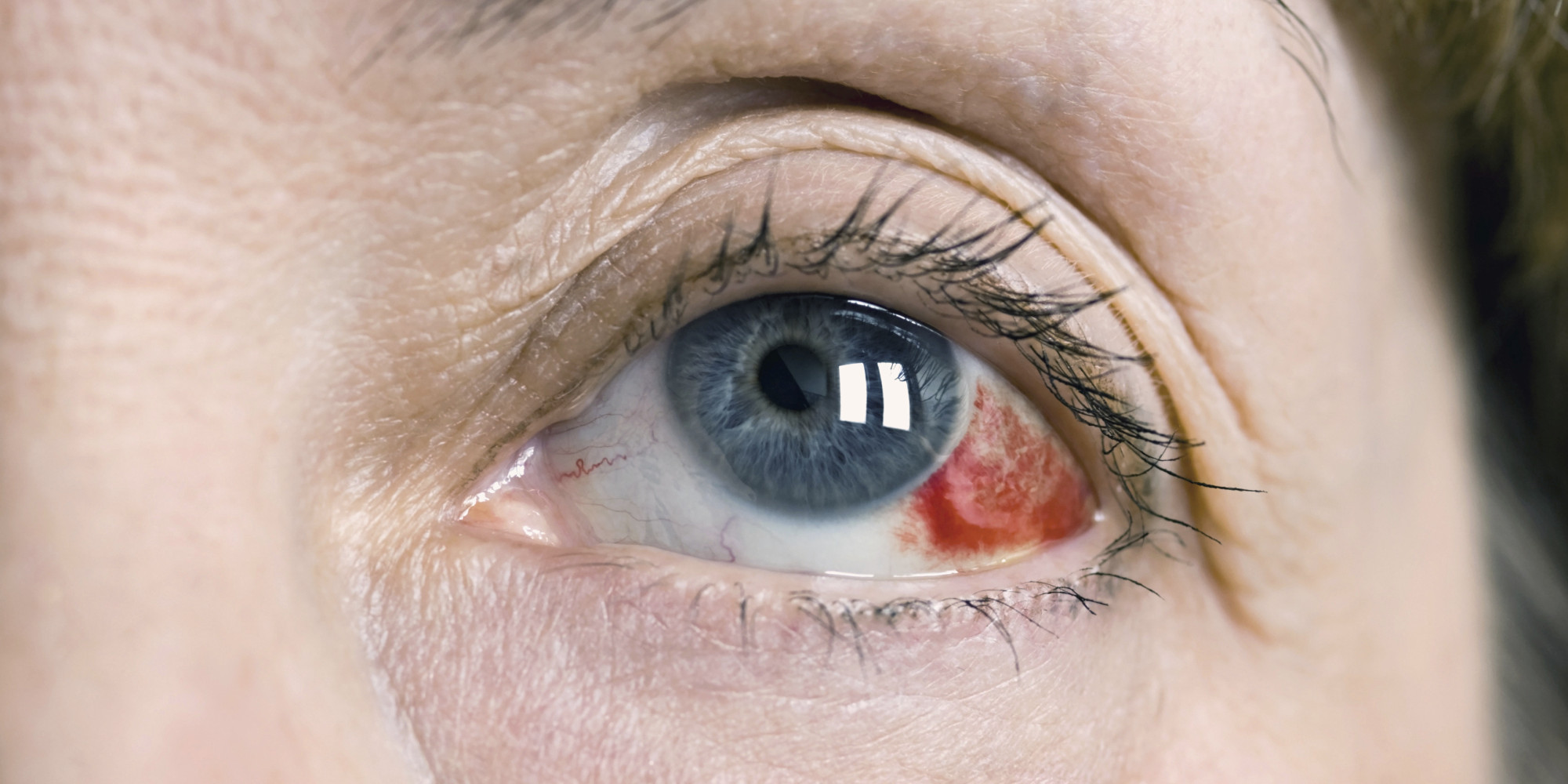 Как сделать белки глаз белоснежными
