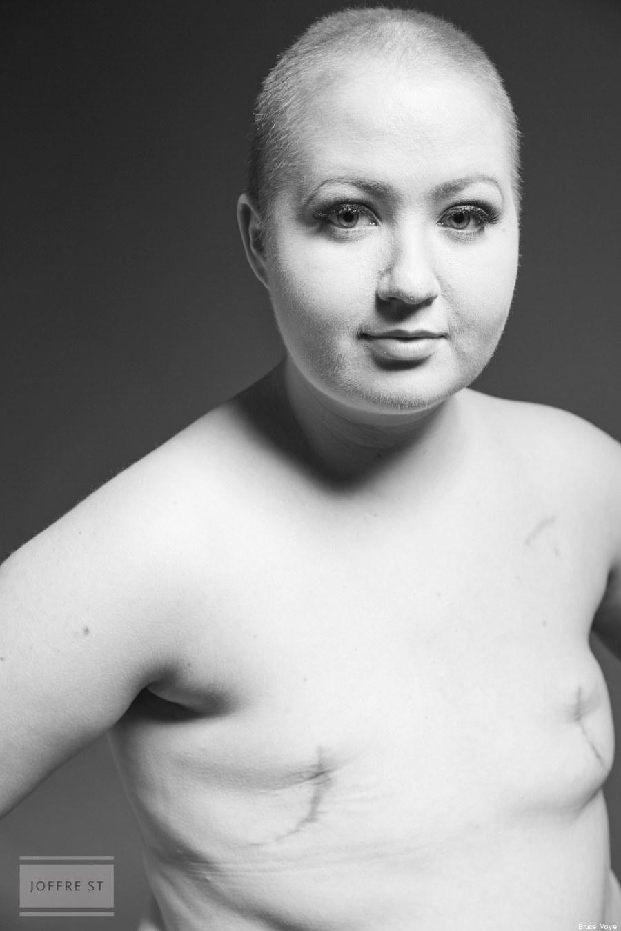 cancro al seno 2