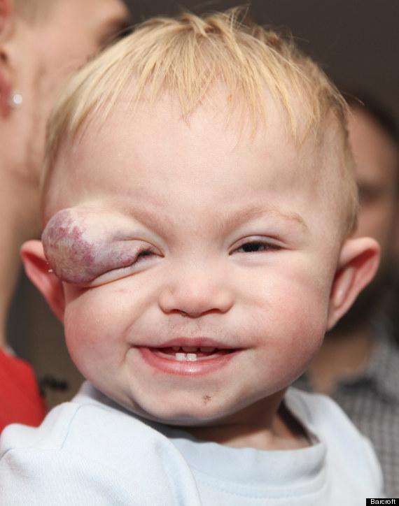 baby tumour