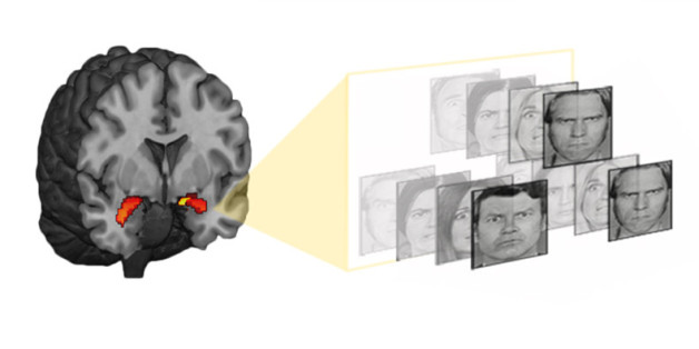 Measuring This Brain Region Could Predict Depression And Anxiety Years Before It Hits