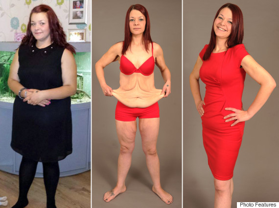 Bride Left With Excess Skin After Losing 9 Stone For Wedding Says