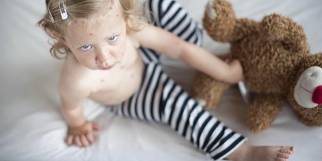 Masern: Eltern, die sich jetzt nicht impfen lassen, gefährden das Leben von Babys