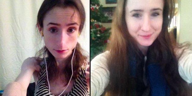 23-Jährige teilt schockierende Magesrucht-Selfies in Diät-Forum