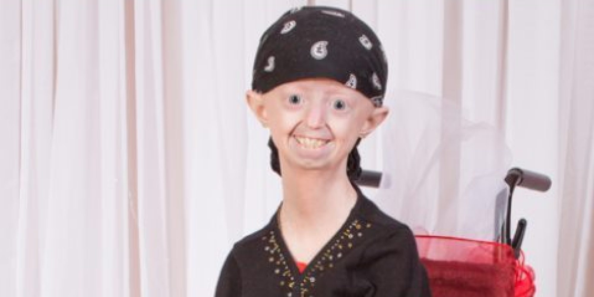 Hayley Okines, The '100-Year-Old Teeanger', Dies Aged 17 ...  Hayley Okines, ...