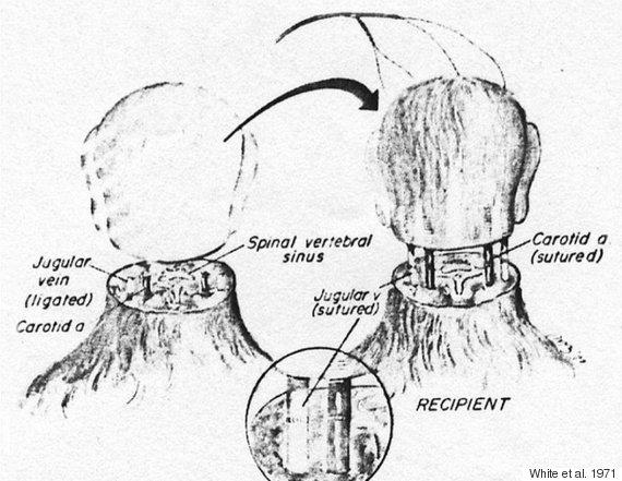head transplant