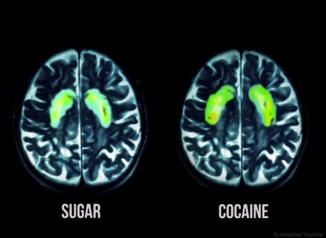 Hier sehen Sie, was Zucker wirklich in Ihrem Gehirn anrichtet ...