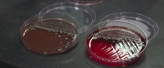 bakterien bart