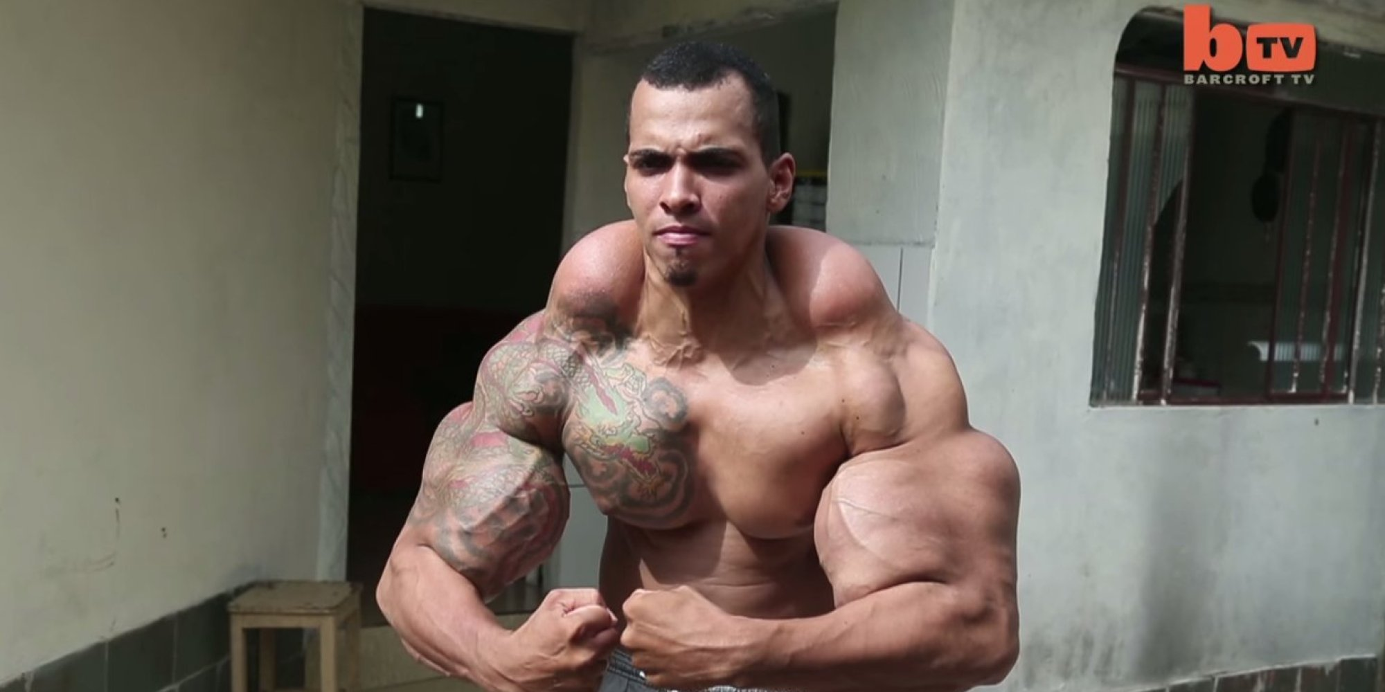 Guy Who Wanted To Be A Real-Life Hulk Almost Had To Have