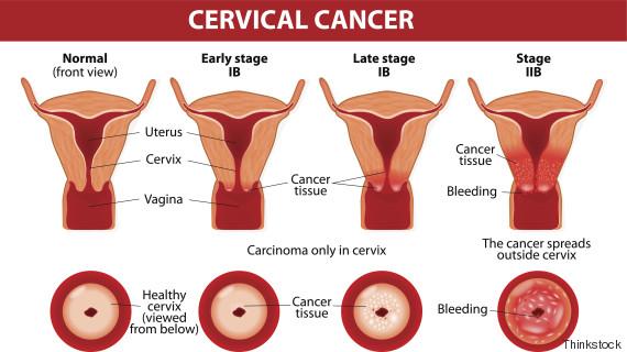 8 Anzeichen von Gebärmutterhalskrebs, die Sie nicht ignorieren ...