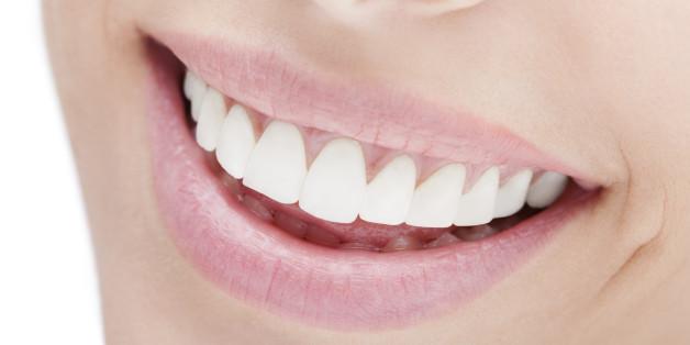 Wie wirken schöne Zähne auf andere?