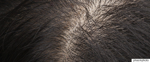 hair scalp