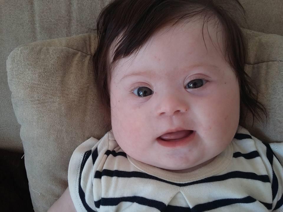 Louise, ma fille, quatre mois, deux bras, deux jambes et un chromosome en plus
