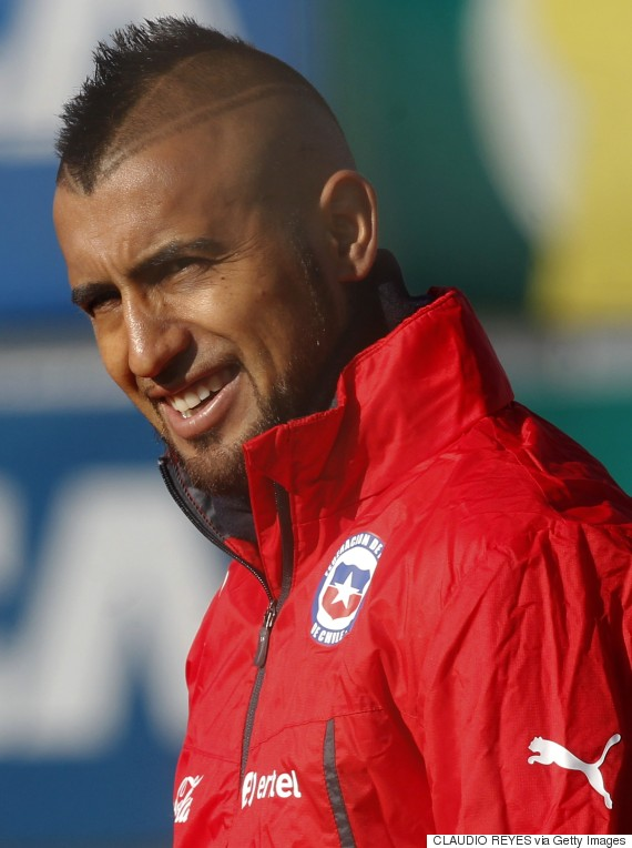 Chilean Vidal Gives Bad Haircut A Whole New Meaning At Copa America