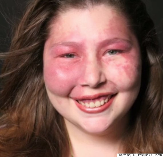 visible genetic condition