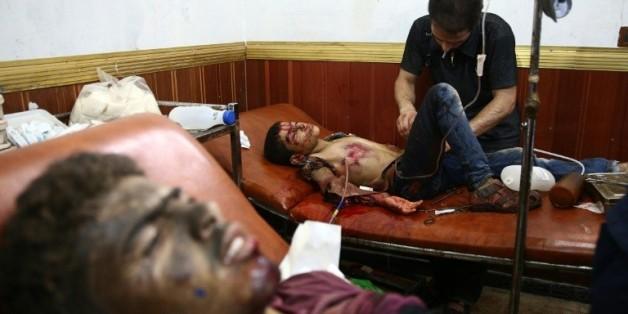 Des Syriens blessés soignés dans un hôpital de fortune de Douma, ville tenue par les rebelles à l'est de Damas, le 16 août 2015