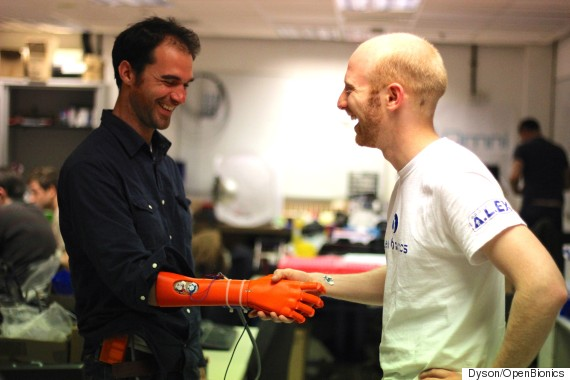 lowcost bionic hand