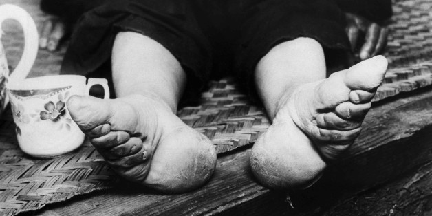 """The national government at Nanking is now trying to stamp out """"bound feet"""" which has caused women and children misery for a great number of years. Chinese women attempt to make their feet smaller by binding them in childhood. This is a Sept. 21, 1936 photo. (AP Photo)"""