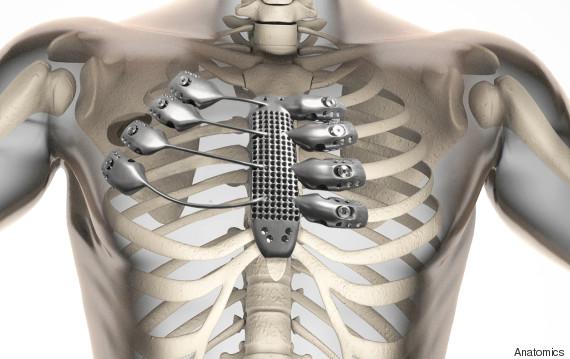 3d printed titanium rib cage