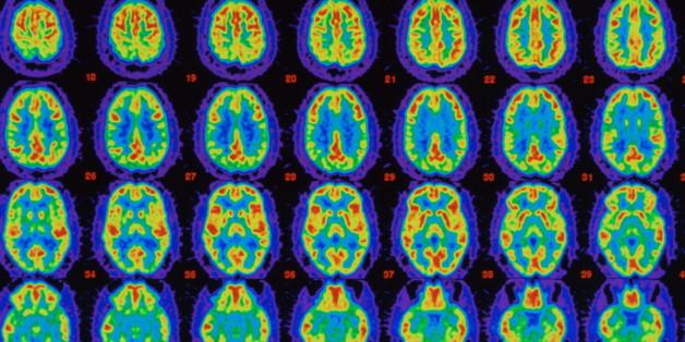 Eine neue Alzheimer-Therapie stellt die Gedächtnisleistung fast vollständig wieder her