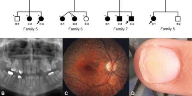 """Des chercheurs marocains contribuent à la découverte des causes d'une maladie rare, le """"syndrome de Heimler"""""""