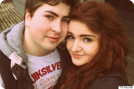 amputee couple