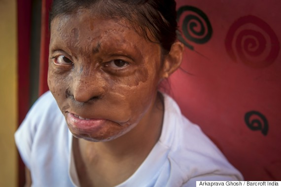 rupa acid attack