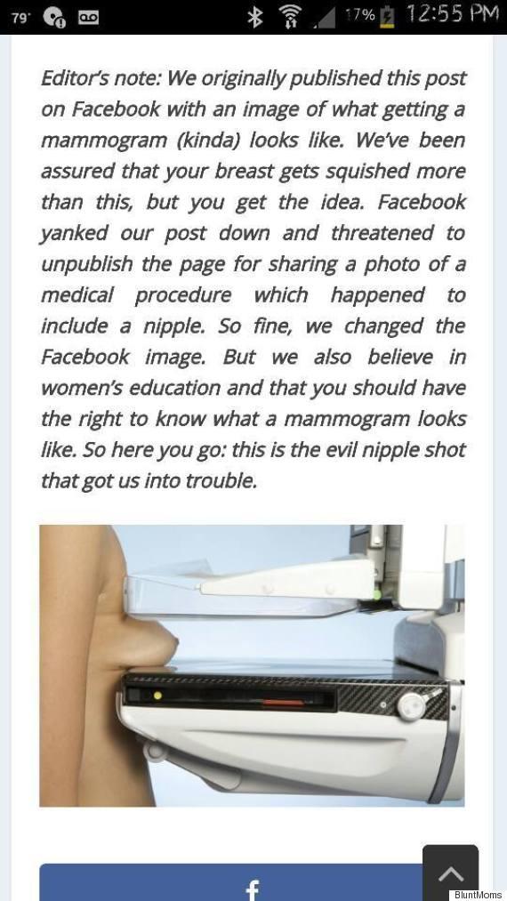 mammogram picture