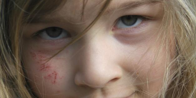 Afghane beißt Mädchen in Köln - wen ihr hier als Schuldigen seht, sagt viel über euch