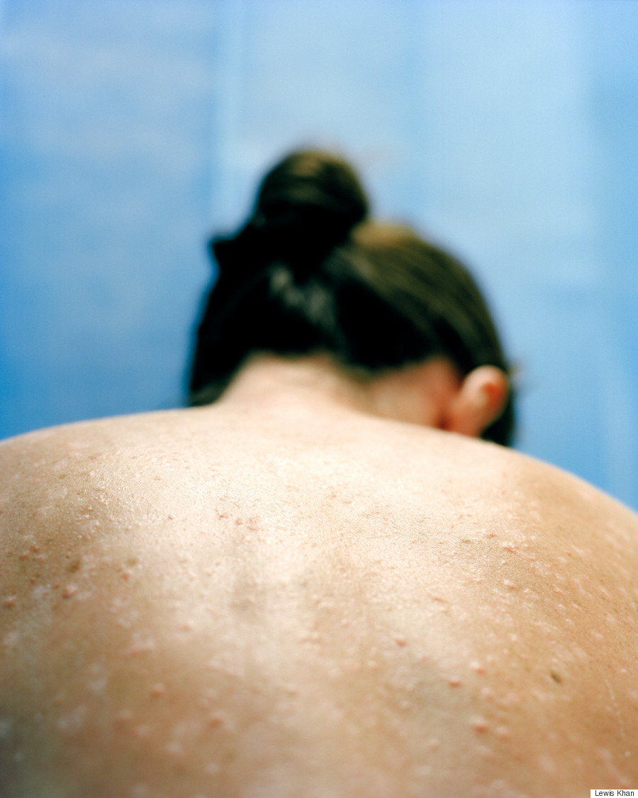 Forum on this topic: What Its Like To Live With Psoriasis, what-its-like-to-live-with-psoriasis/