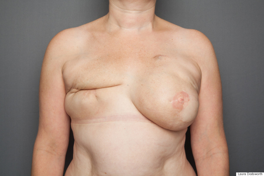Breast mastectomy pictures