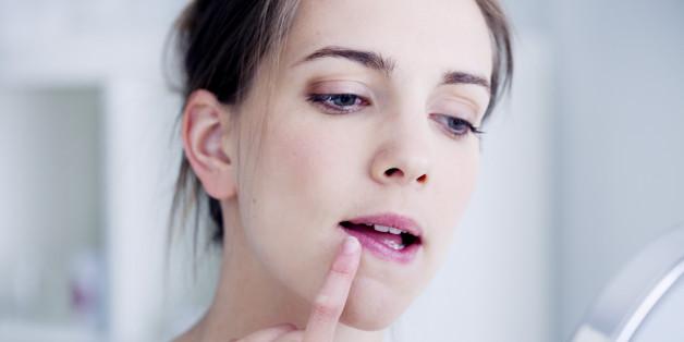 L'herpès touche 67% de la population mondiale qui a moins de 50 ans
