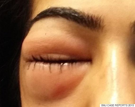 swollen eye